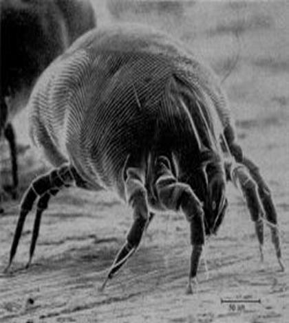 Enlarged View of a Dust Mite